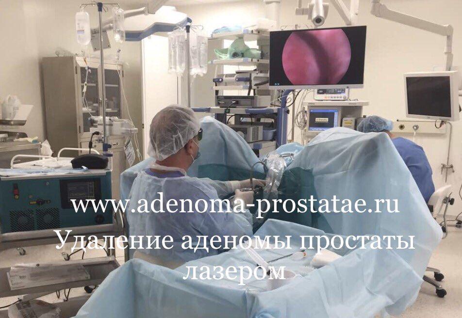 Лазерная операция простаты в новосибирске