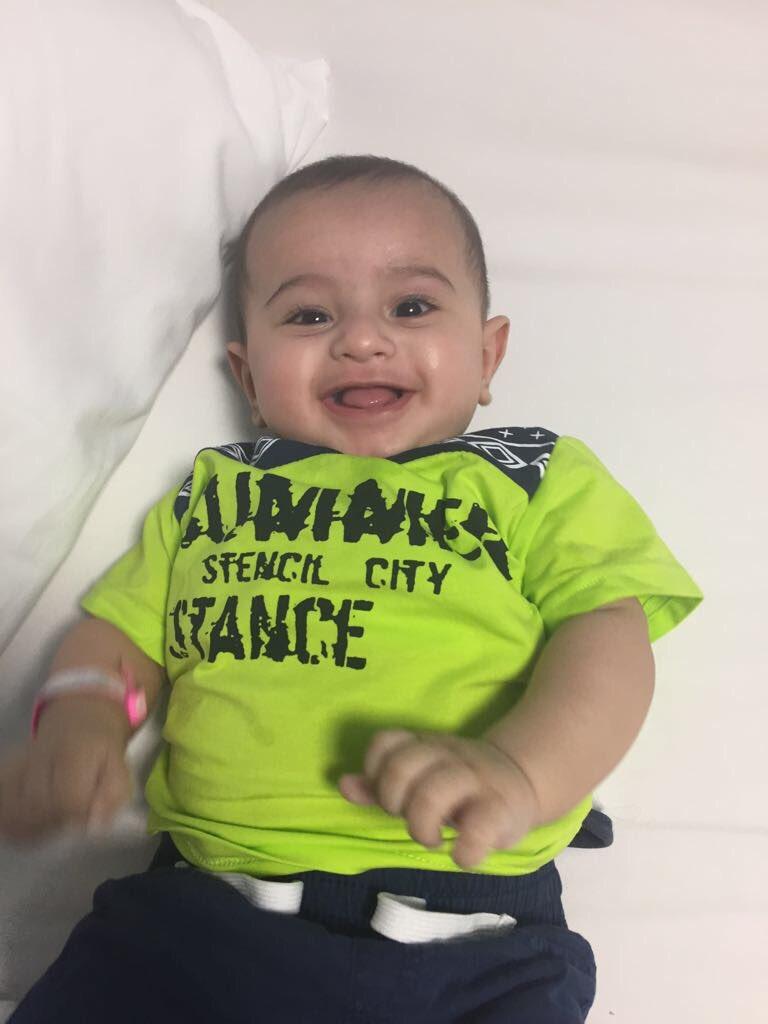 ابتسامة الطفل 'تَيم' ذو ٦ أشهر بعد استئص...