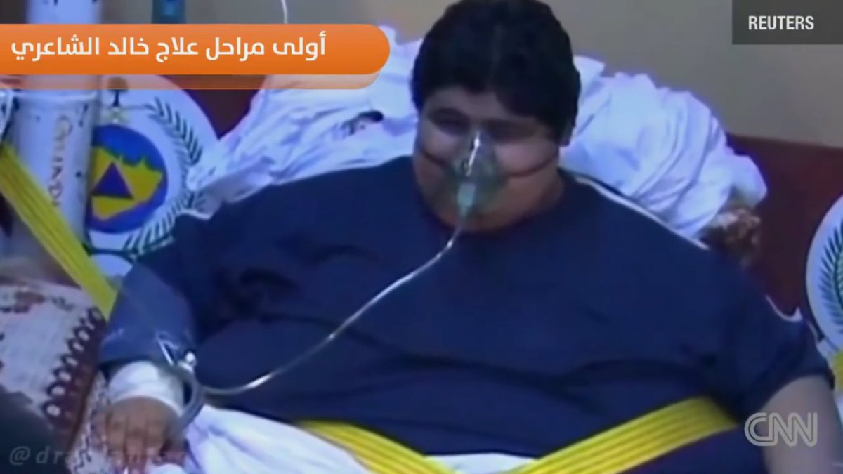 Ce jeune homme saoudien a réussi à perdre 542 kilos en quelques années via @AlArabiya_Eng