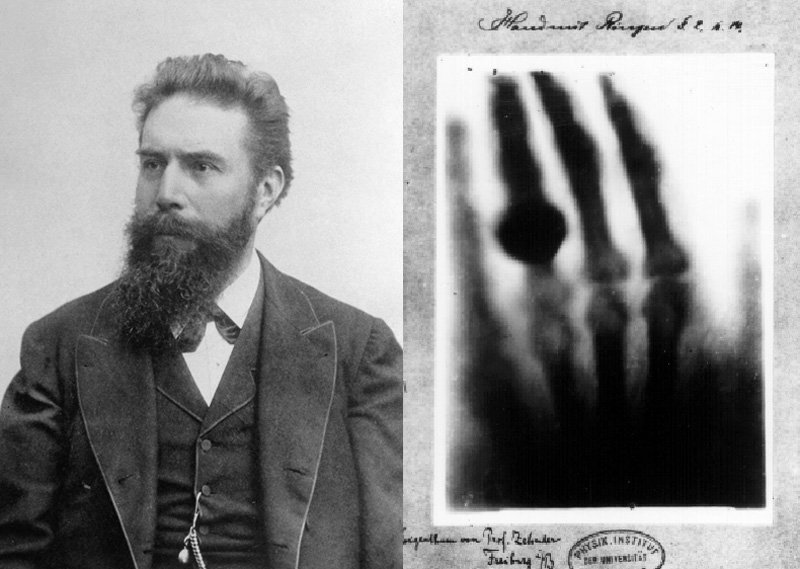 Image result for German scientist discovers X-rays 1895 images