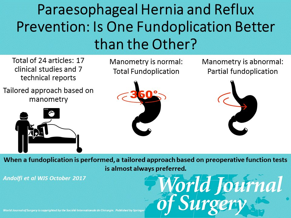 New #WJS #VisualAbstract on one of the most debated topics in #surgery: Paraesophageal #Hernia and #Reflux Prevention: Is One Fundoplication Better than the Other? Read @ https://link.springer.com/article/10.1007/s00268-017-4040-5…