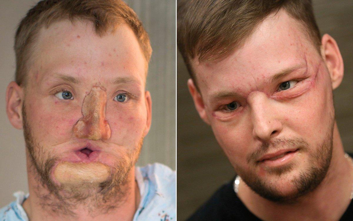 Mulher encontra homem que recebeu transplante de rosto do marido nos EUA https://t.co/Unwzci67H5 #G1