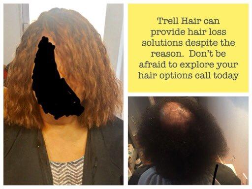 trell hair