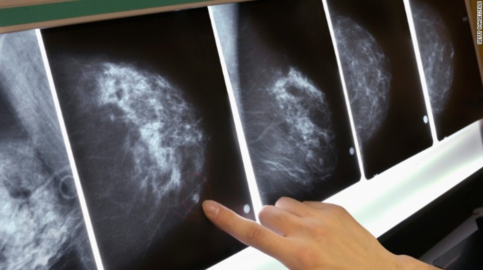 Researchers discovered 72 previously unknown gene #mutations that lead to the development of #breastcancer:  https:// goo.gl/5tn5y7  &nbsp;  <br>http://pic.twitter.com/cIc0PpC1t8