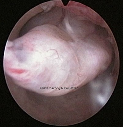 Removing endometrial polyps improves the rates of spontaneous #pregnancy and #fertility rate when using ART <br>http://pic.twitter.com/PjdzfIMjYd
