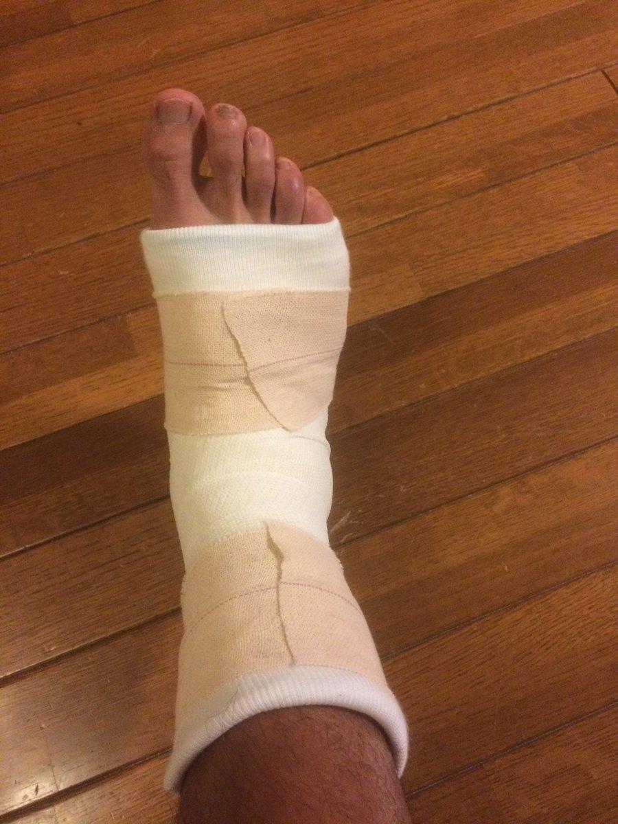 果 骨折 足 関節 外