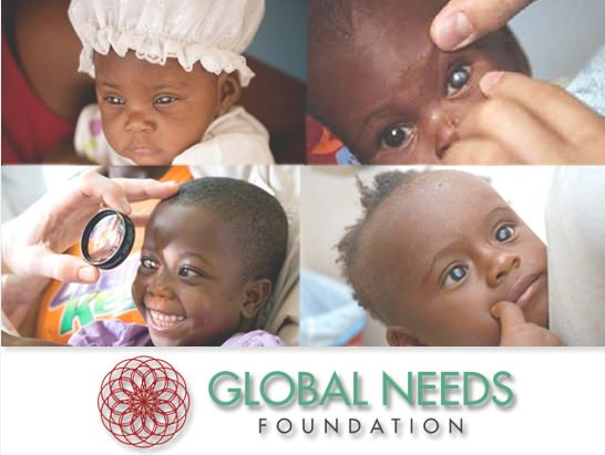 #Help us to build and run three #cataract #surgery centers in #SierraLeone  #Egypt and #Ghana.  For more details and donations:  http:// globalneedsfoundation.org/cataract-eye-s urgery-centers/ &nbsp; … <br>http://pic.twitter.com/wtvE03bbOd