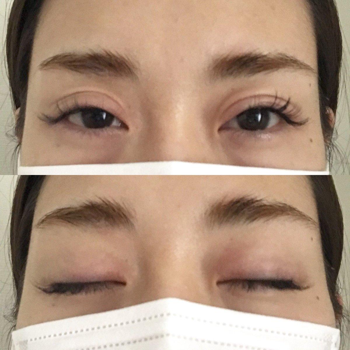 た 目 が とき 腫れ 目が腫れた!病気なのか見極める方法は?