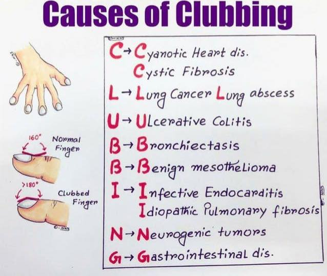 Causes of Nail Clubbing. #foamed #meded #usmle #medicine<br>http://pic.twitter.com/jIGTuJ2Qnr