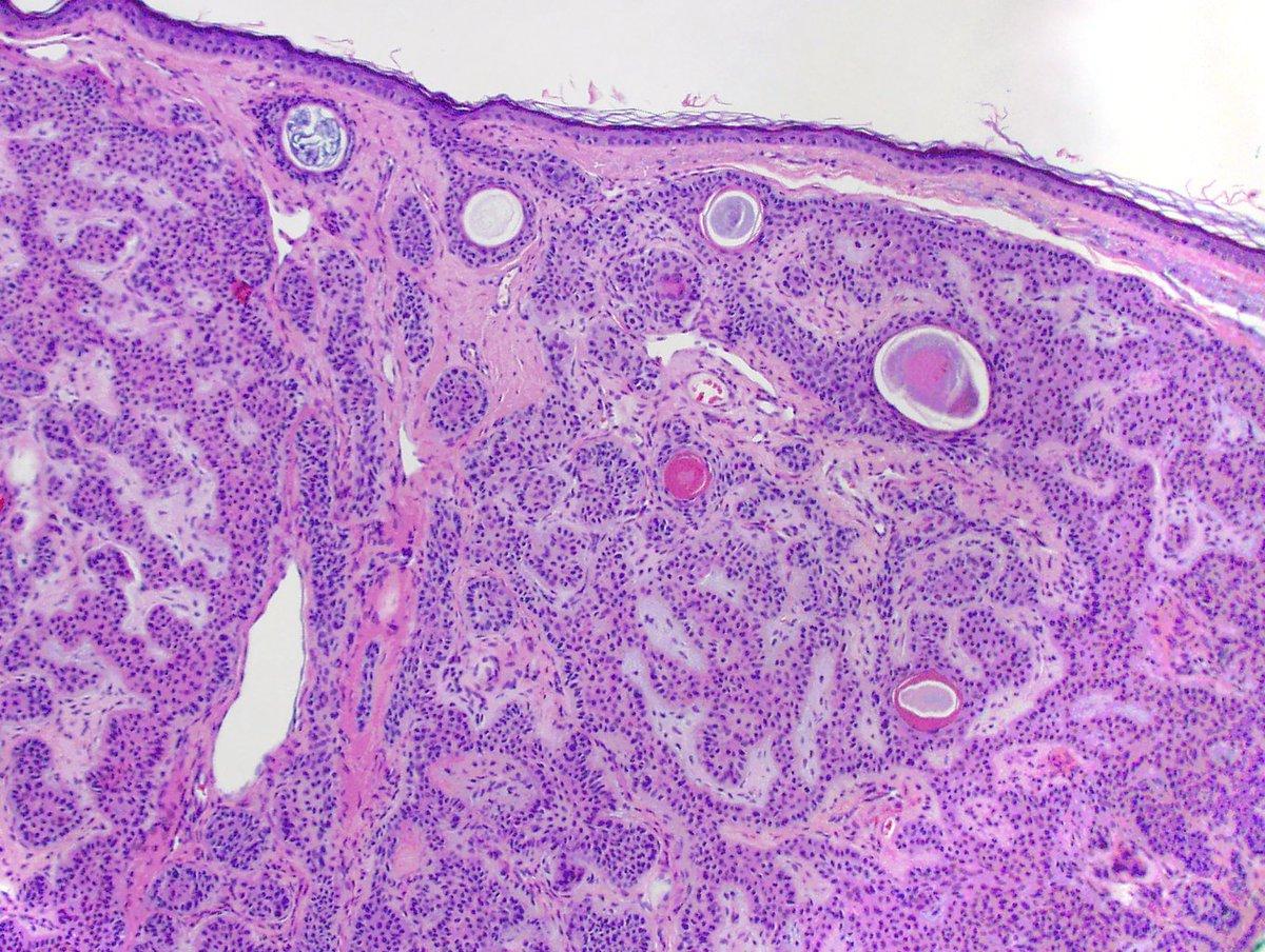 Basaloid Follicular Hamartoma