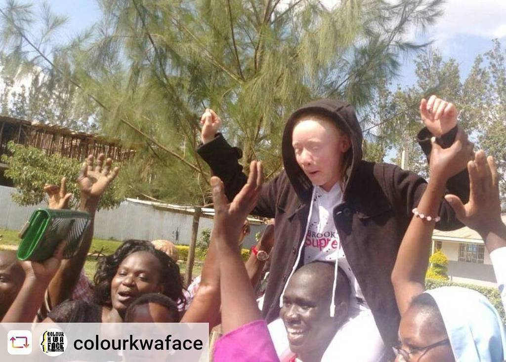 """#Rensta #Repost: @colourkwaface """" The best news to come out of Kenya today. Here&#39;s the top KCPE Candidate Goldalyn Kadiya of St Anne junior Lubao, Kakamega who scored 455 marks. Congratulations #KCPEResults <br>http://pic.twitter.com/Ffld8RAIna #AlbinismNiTrue """"  http:// ift.tt/2BcvVFk  &nbsp;  <br>http://pic.twitter.com/r31hXXAwAo"""