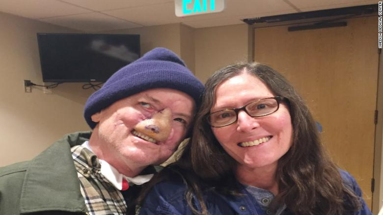 A man who lost nose and mouth in a vicious grizzly bear attack shared his story of survival https://t.co/VelhNsXm3h