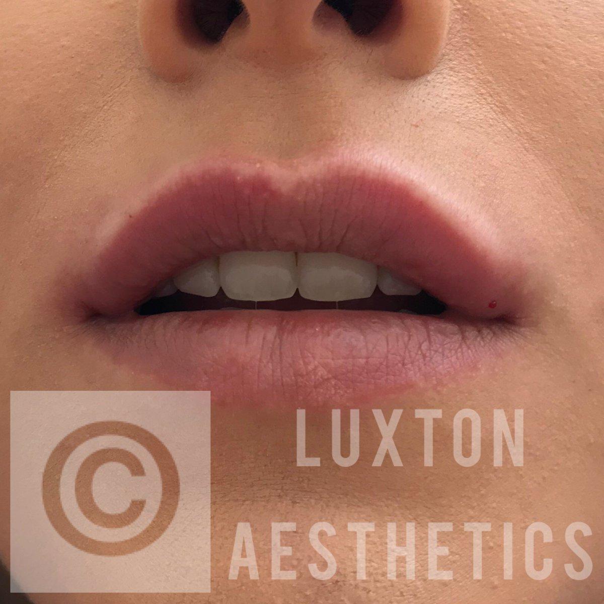 Luxton Aesthetics (@LuxtonAesthetic) | Twitter