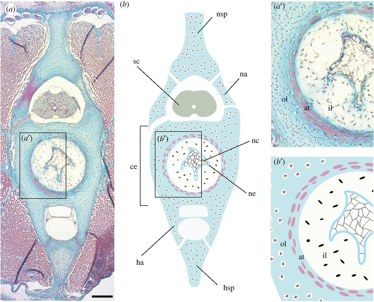 Another day, another paper from @kecriswell &amp; @GillisLab! #OpenAccess in @royalsociety: vertebral development in sharks/rays  similar to 4-pods, reflecting primitive condition. Teleosts do something different &amp; strange, &#39;cause that&#39;s what teleosts do!  http:// rspb.royalsocietypublishing.org/content/284/18 67/20172121 &nbsp; … <br>http://pic.twitter.com/KEyJiU9fMi