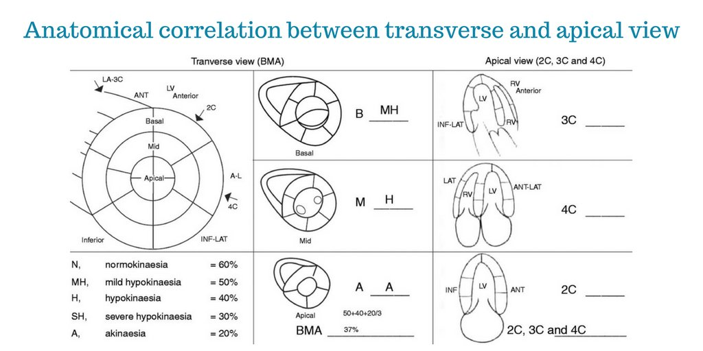 LVEF assessment by non-cardiologists using simplified WMSI:  http:// ow.ly/YMwI0  &nbsp;   #OpenAccess #FOAMed<br>http://pic.twitter.com/RBRXniJQal