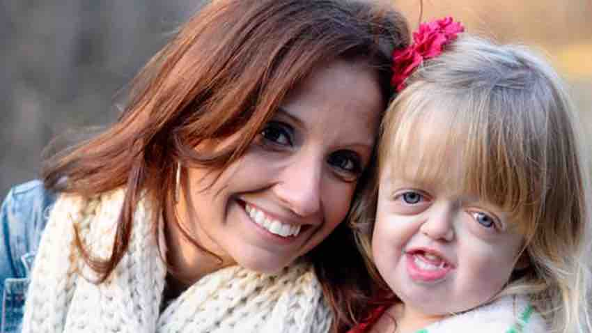 A mom's powerful reflections on the #Wonder story, and her hopes for her own daughter with a craniofacial difference:  http:// michmed.org/eN2WY  &nbsp;   #choosekind<br>http://pic.twitter.com/XpOB3pyw3t