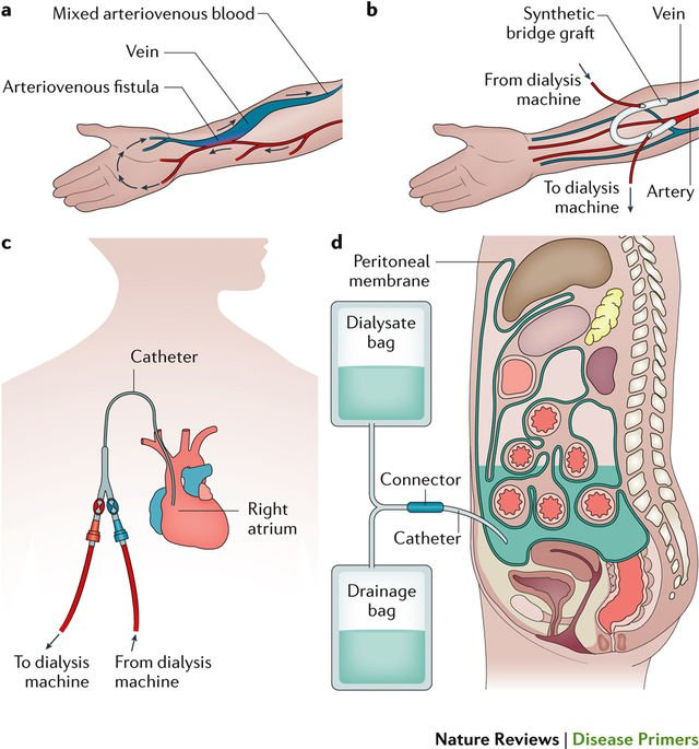 Naturerevdisprimers On Twitter Haemodialysis And Peritoneal