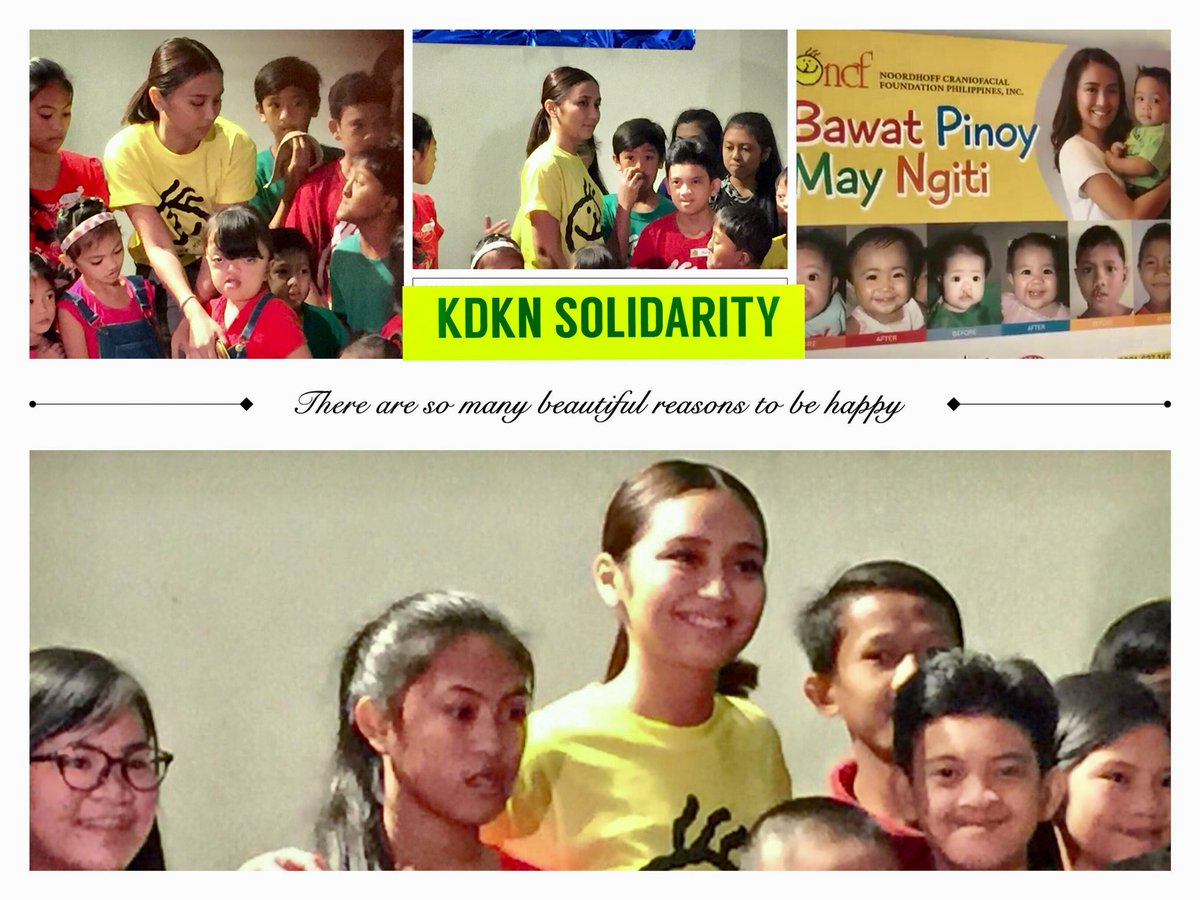 Image result for kathryn bernardo with craniofacial patients