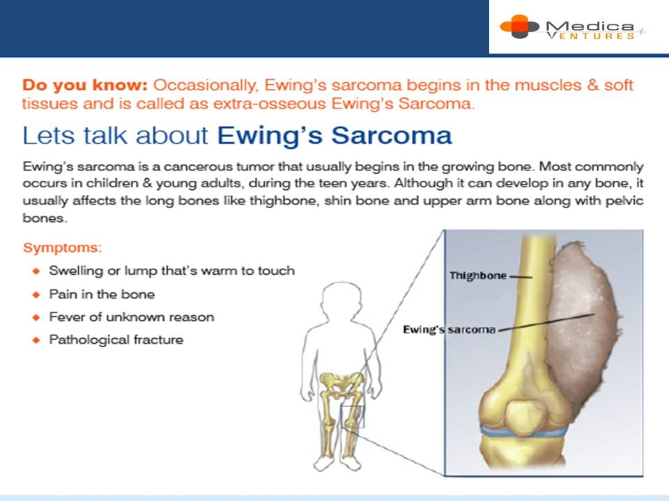 ewings sarcoma hashtag on Twitter