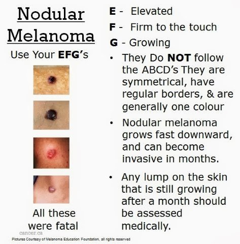 Screencancer Uk On Twitter We Are All Getting The Understanding Of The Abcde Rules Of Melanoma But What About Efg Of Nodularmelanoma Take A Look Understand The Facts And Check Your Skin