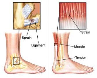 Image result for sprain vs strain