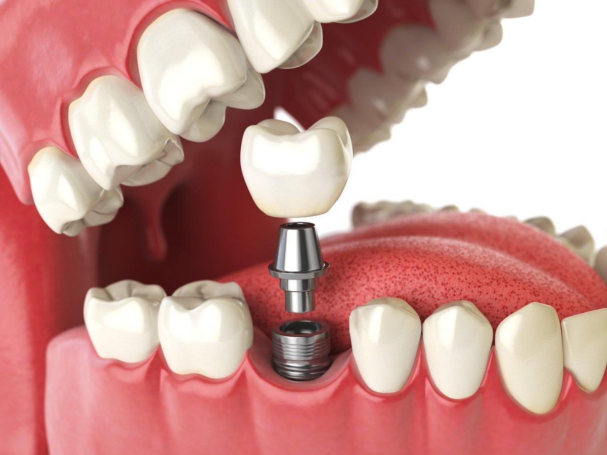 """Картинки по запросу """"Здоровые зубы: стоматология в Москв"""""""