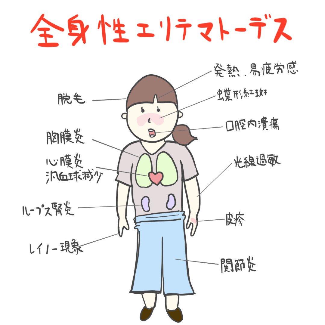セレーナゴメスの現在!病気と最近の状況まとめ【全身性 ...