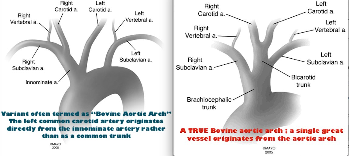 Ana On Twitter There Is No Bovine Aortic Arch In Human