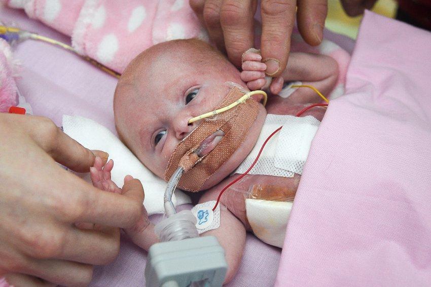 Genfehler: Baby kommt mit Herz außerhalb der Brust zur Welt -und überlebt https://t.co/iRCctpVoB3