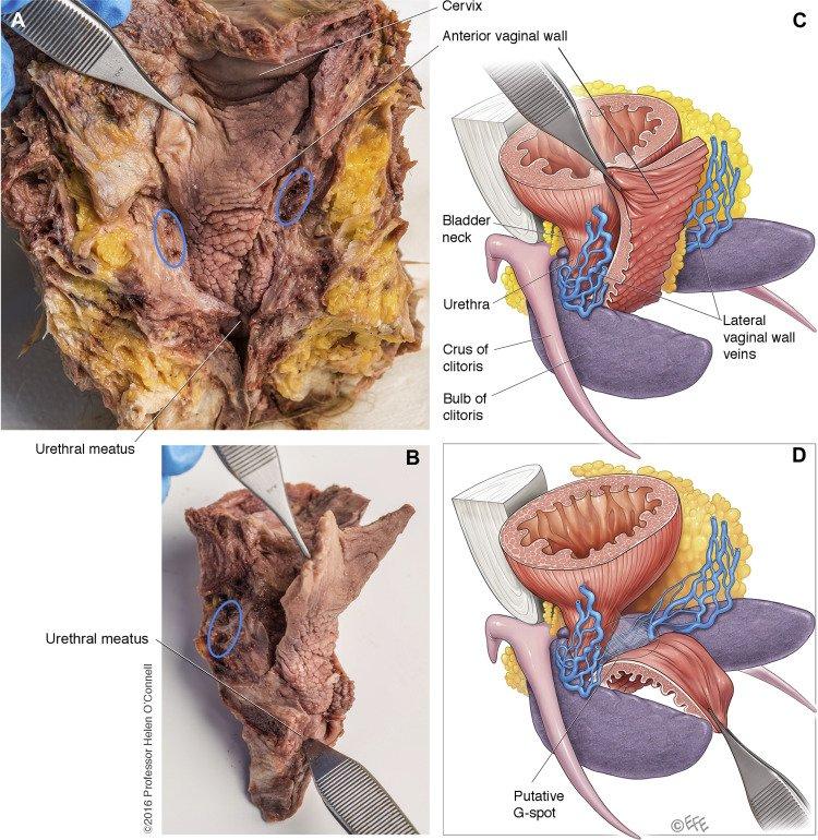 Vaginal flap for urethral neomeatus reconstruction after radical surgery for vulvar cancer