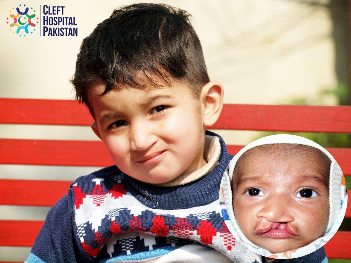 Image result for cleft hospital pakistan