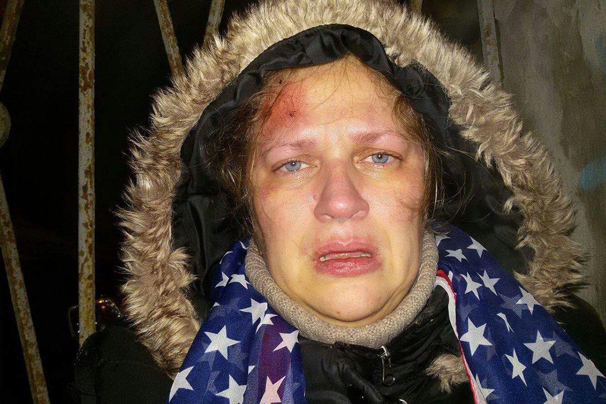 Эту женщину избили до сотрясения прокремлевские активисты за то, что она держала в руках плакат «Путин — вор». Врачи не хотели оказывать ей помощь из-за ее политических убеждений, а полиция по тем же причинам отказала в возбуждении дела: https://t.co/DVHofydyGj