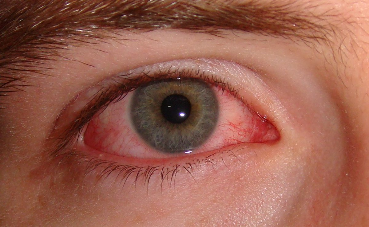 708222ec978 Approximately 10% of people with inflammatory bowel disease experience eye  problems