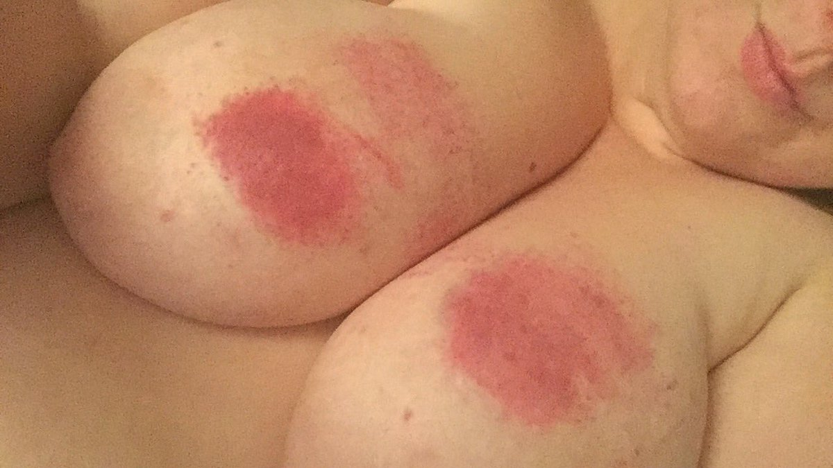 Bruised tits bdsm