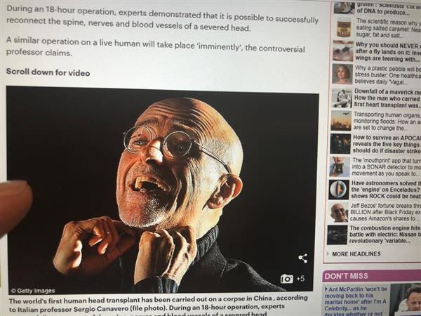 """究極 #若返り 手術か…ヒトの頭部を移植「成功」イタリア& #中国 2博士""""神""""超える野望…世界から…"""