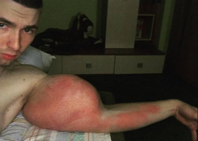 'Popeye' russo injeta óleo nos braços e corre risco de amputação https://t.co/CNroeiJnQB
