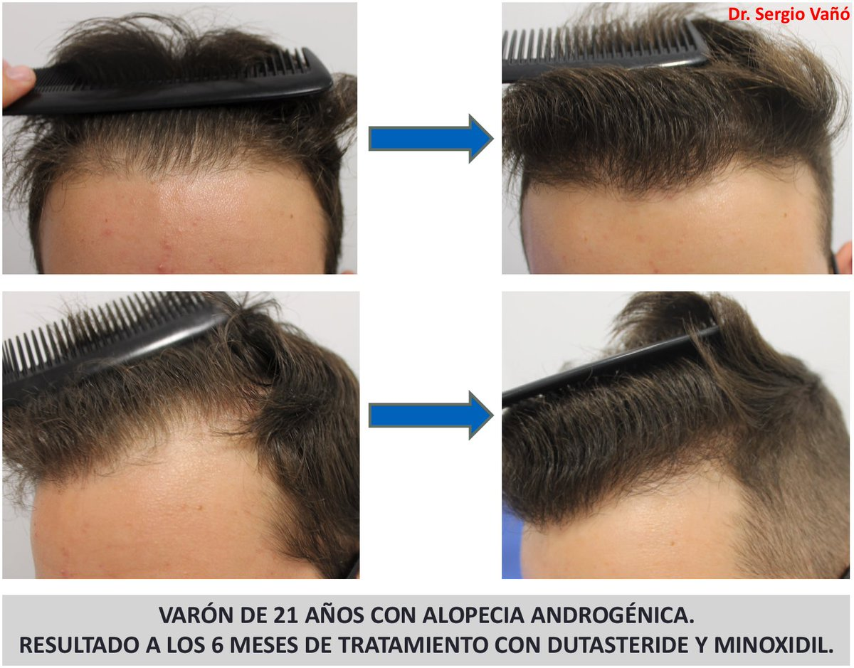 Dr Sergio Vano On Twitter Quick Response 6º Month Of This Patient With Androgeneticalopecia To Therapy With Oral Dutasteride Mesotherapy With Dutasteride Topical 5 Minoxidil Tricologiagpj Tricohrc Https T Co Krvmkhjs1h