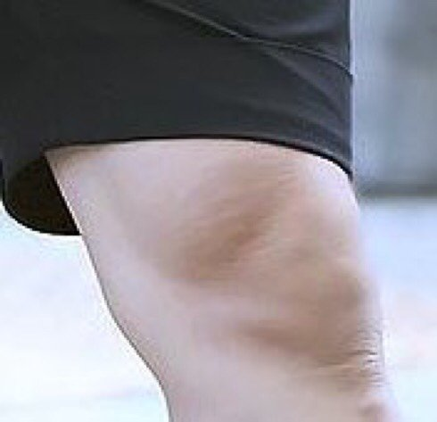 jimin's litle strech marks on his knees...