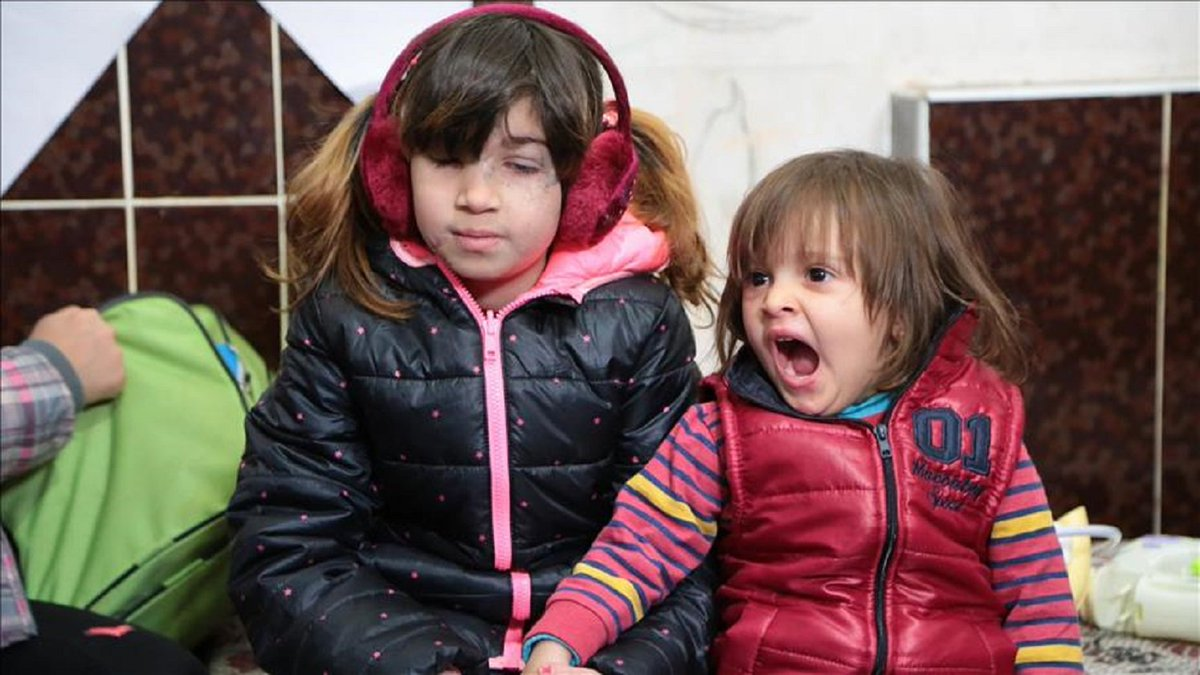 #Syrian girl turned blind after attack h...