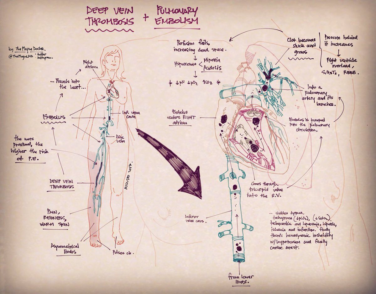 The Doctors Sketchbook On Twitter Deep Vein Trombosis And How It Causes Pulmonary Embolism Pathophysiology Explained Medicine