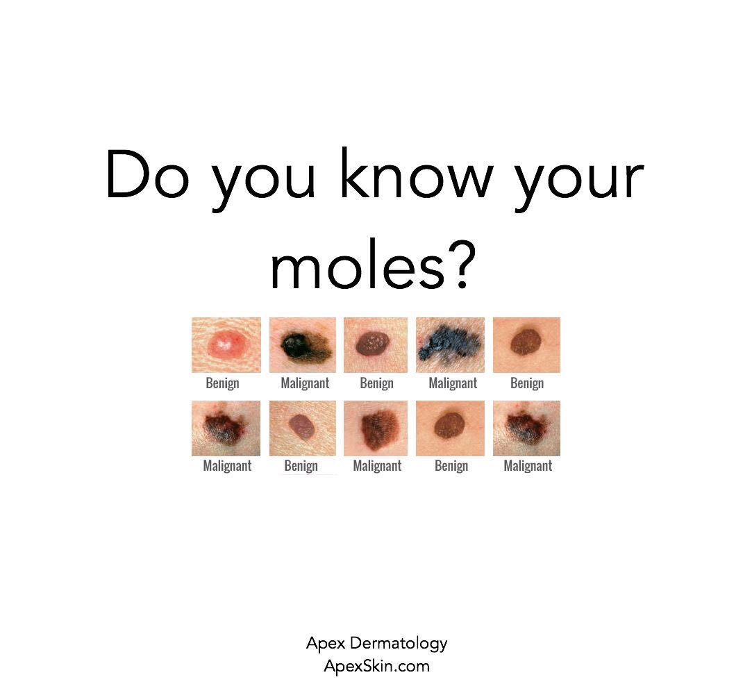Apex Skin On Twitter Do You Know The Differences In Skin Cancers It S Important To Remember These And See One Of Our Specialists If You Re Worried About An Abnormal Looking Growth The Key