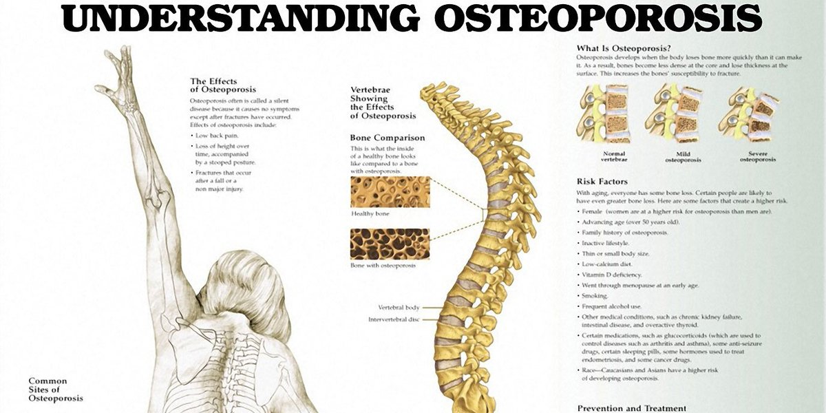 RT Calcium and Vitamin D Effective for Reducing Osteoporosis Risk ➡ https://t.co/TMiJCaf3K4 https://t.co/XQkrMgJ6D3 #health #wellness