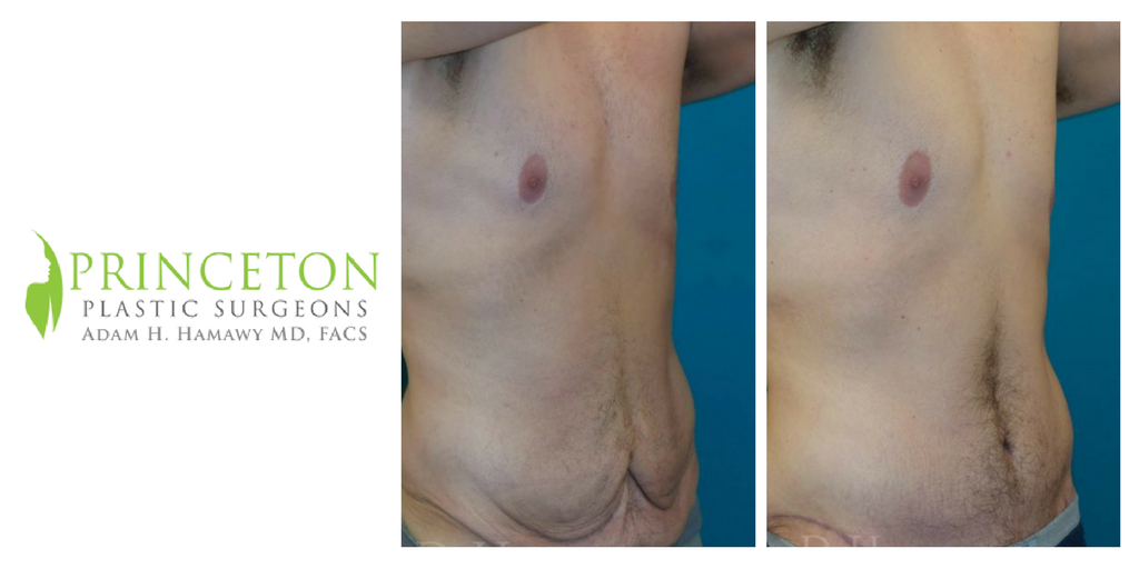 #Weight loss is great, but the extra skin left behind can leave you feeling underwhelmed.  This patient underwent a #TummyTuck to get rid of that #ExtraSkin.  Click the link to see more of our patient gallery & call 609-385-0330 to learn more. http://ow.ly/ubcI30gXjDa