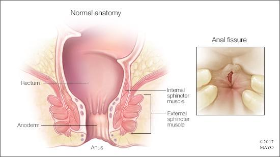 Imaging And Surgical Management Of Anorectal Vaginal Fistulas