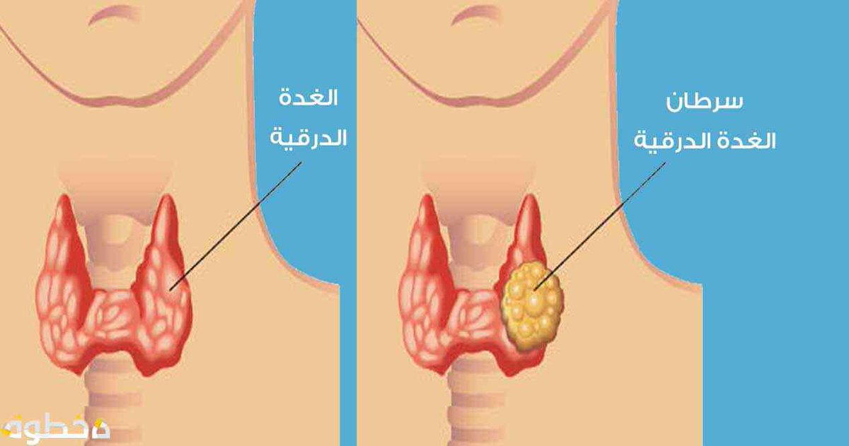 Dr Khalid Alghamdi On Twitter سرطان الغدة الدرقية من اكثر الأورام انتشارآ عند النساء في السعودية تصل لنحو ١٠ من حالات الأورام بحسب السجل الوطني للأورام في السعودية وتتراوح الإعمار ما بين ٢٥