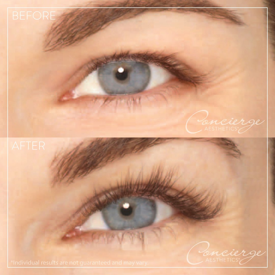 Concierge Aesthetics On Twitter Grow Thicker Longer Lashes With