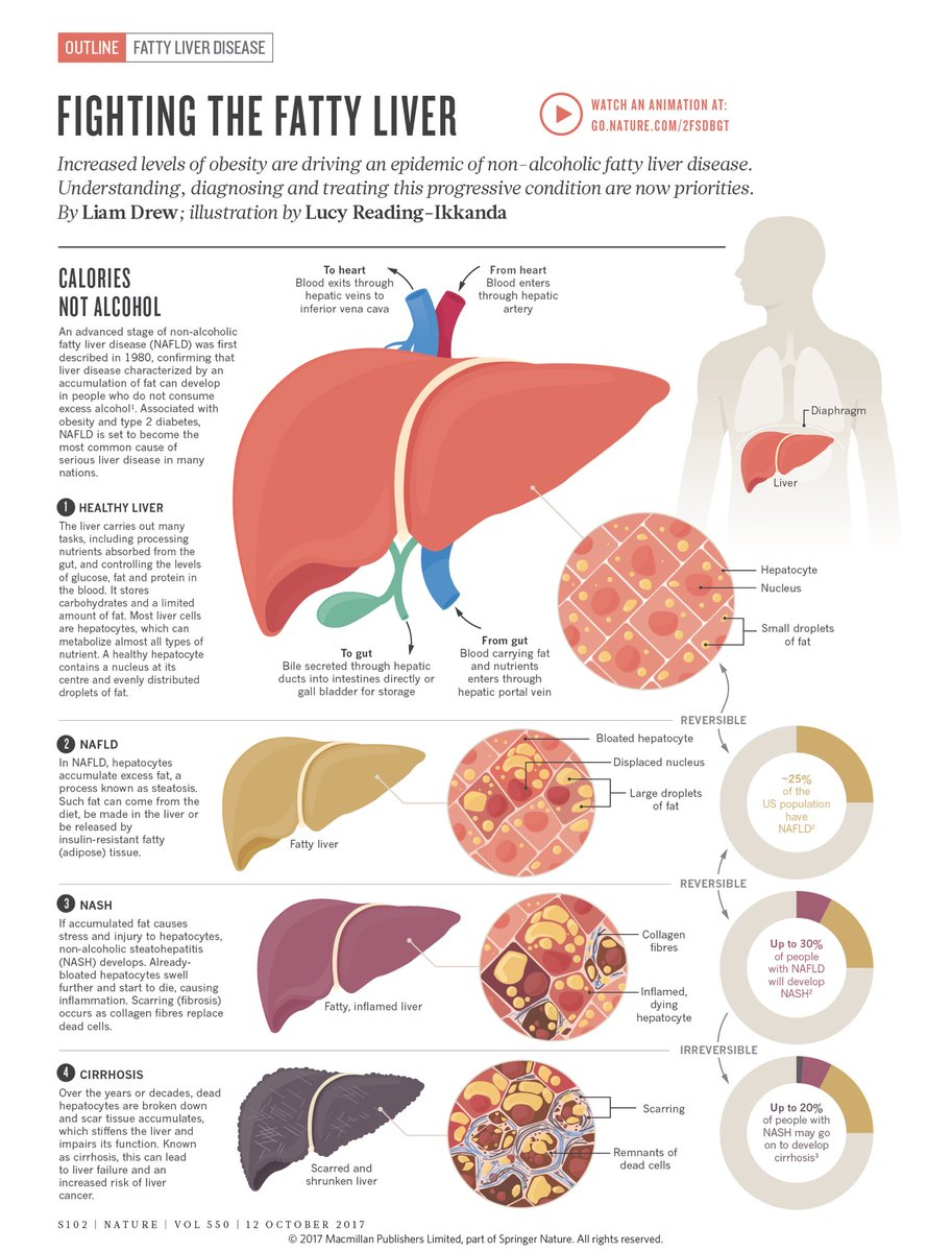 Steatosis of the liver is a companion of excessive weight