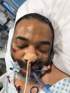 Appeal to identify man found collapsed near University College Hospital in #Camden. Suffered heart attack and currently in induced coma.  We meed to trace his family as soon as possible. Call Central North CID on 101 with any info https://t.co/ap591dMjvi