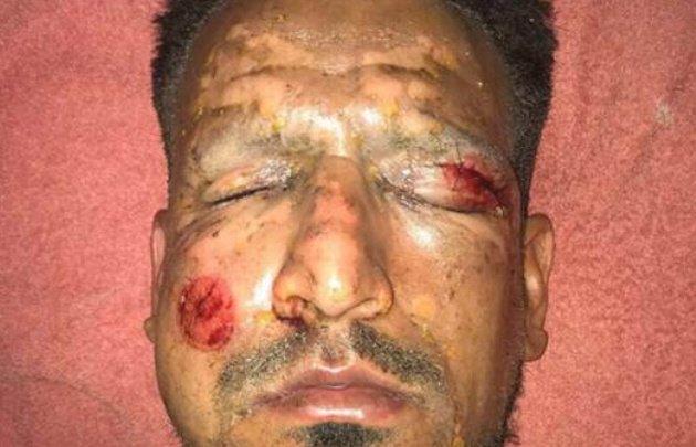 Viatri sufrió heridas en la cara y un ojo por la pirotecnia