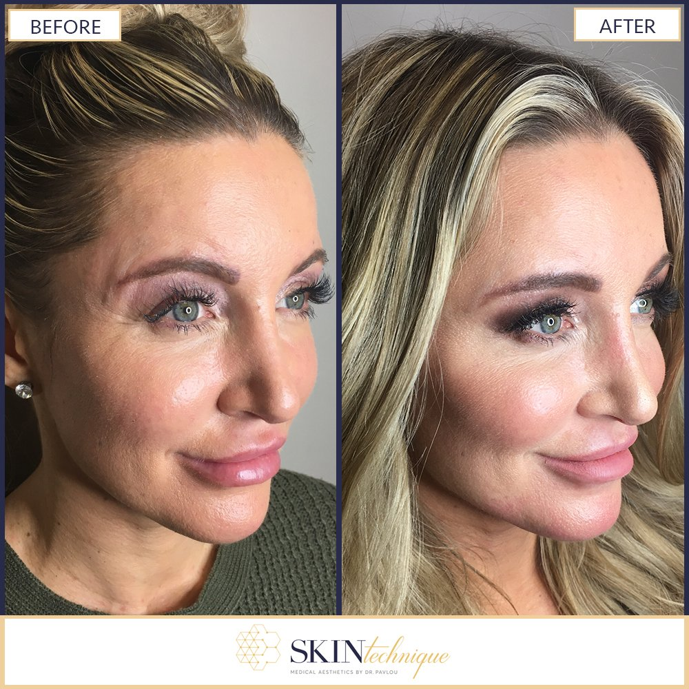Skin Technique On Twitter This Before After Image Shows How A Non Surgical Face Lift Provides Antiaging Results With No Down Time Subtracting Years From A Person S Face This Was Tactfully Done By Drpavlou Using